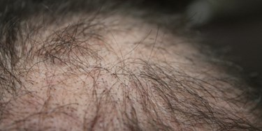 Close up of scalp suffering from hair loss