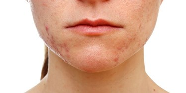 Close up of woman's face with acne